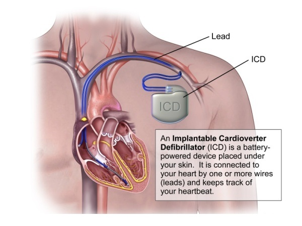 Cardiac Re-synchronization Therapy