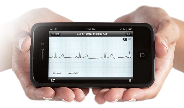 AliveCor ECG for Atrial Fibrillation
